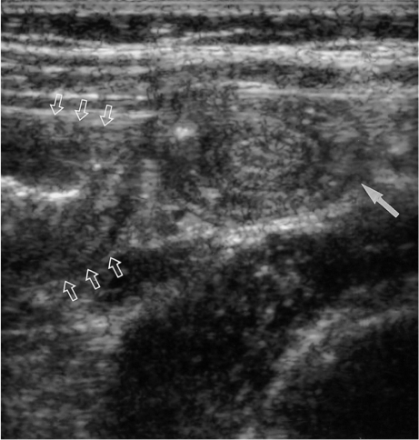 Small bowel intussusception associated with ileocolic intussusception in a 3-year-old girl. Immediate post-enema US reveals a multi-layered mass (solid arrow) suggesting small bowel intussusception, adjacent to the swollen reduced terminal ileum (open arrows). The small bowel intussusception spontaneously reduced during US examination and her abdominal pain subsided.