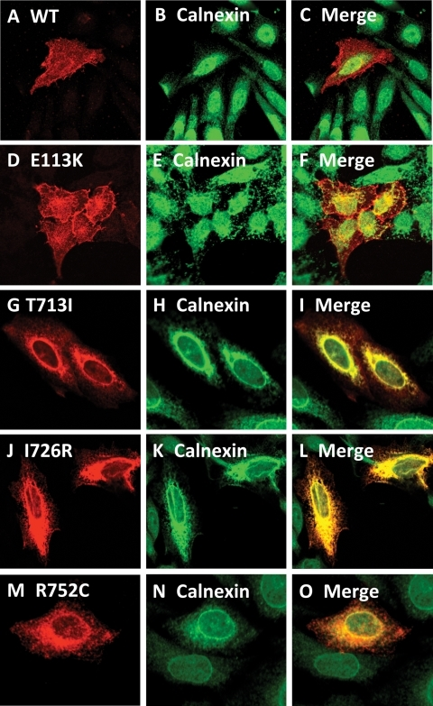Comparison of the intracellular localization of DDR2 wild-type and SMED-SL patient mutant variants with the ER marker. HeLa cells were transiently transfected with plasmids encoding the indicated HA-tagged DDR2 protein, fixed and stained with antibodies against the HA-tag (monoclonal) and calnexin (polyclonal) as described in Materials and Methods. (A), (D), (G), (J) and (M) show the distribution of over-expressed HA-tagged DDR2 proteins. (B), (E), (H), (K) and (N) show the distribution of calnexin, which is predominantly localized to the ER, while (C), (F), (I), (L) and (O) show the extent of co-localization of DDR2 proteins with calnexin.