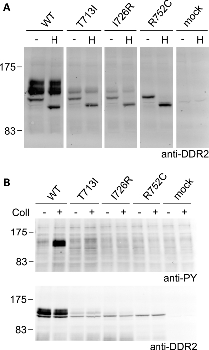 Defective cellular trafficking causes loss of collagen-induced signaling for the SMED-SL patient mutant variants T713I-DDR2, I726R-DDR2 and R752C-DDR2. HA-tagged full-length DDR2 wild-type or mutant variants were transiently expressed in HEK293 cells. (A) Cell lysates were treated with Endoglycosidase H for 3 h at 37°C (H) or left untreated for 3 h at 37°C (−) and analyzed by SDS–PAGE and western blotting. The blot was probed with polyclonal anti-DDR2 antibodies. (B) Cells were stimulated with 10 µg/ml of rat tail collagen I (+) or 1 mm acetic acid (−) for 90 min at 37°C. Cell lysates were analysed by SDS–PAGE and western blotting. The blots were probed with anti-phosphotyrosine (anti-PY) monoclonal antibody 4G10 (upper blot) or polyclonal anti-DDR2 antibodies (lower blot). The positions of molecular markers (in kDa) are indicated. The experiments were carried out three times with very similar results.