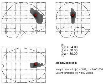 The statistical parametric mapping (SPM) of areas of decreased rCBF in the anorexia nervosa restricter group. Decreased of rCBF are also shown in the bilateral anterior parts of cingulate gyri (ACC: Brodmann's areas 24) and parts of frontal regions (parts of areas 8, 9,10 and 32) when compared to the anorexia nervosa patients with binge/purge eating (p < 0.001, extent = 550)