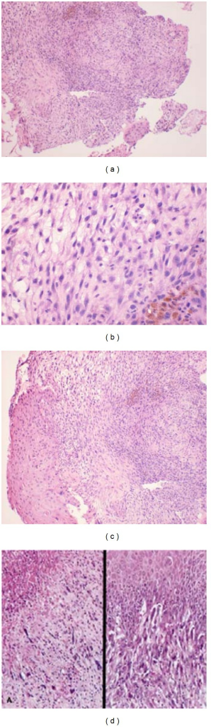 Histological findings: loose myxomatous fibrous connective tissue containing both spindle-shaped cells as well as ovoid cells with hyperchromatic, pleomorphic nuclei with eosinophilic cytoplasm. In some areas, cells assumed a whirling interlacing pattern and at one margin dysplastic-stratified squamous epithelium characterized by cells with pleomorphic hyperchromatic nuclei.