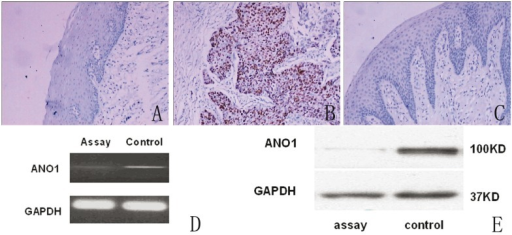 Expression of ANO1 in clinical specimens and the scc-25 cells. A: ANO1 is negative in oral normol tissure by immunohistochemical staining SP×200; B: ANO1 is positive in oral cancer tissure by immunohistochemical staining SP×200; C: ANO1 is negative in oral cancer tissure by immunohistochemical staining SP×200; D: The RT- PCR analysis of ANO1 mRNA levels in scc-25 cells after infection with lentivirus,the expression levels of ANO1 mRNA were (0.14±0.01) in assay group,(0.32±0.02) in control group, (Student's t-test, t=-24.55, P<0.0001); E: The Western blots analysis of ANO1 protein expression in scc-25 cells after infection with lentivirus,the protein expression levels of ANO1 were(0.22±0.08) in assay group,(1.16±0.09)in control group , (t=-19.66, P<0.0001).