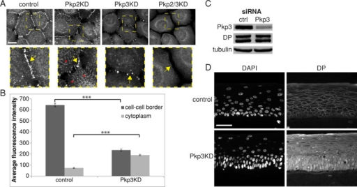 Pkp3 is required for efficient assembly of DP into desmosomes. (A) Immunofluorescence staining for DP representing the distinct patterns of its disruption in Pkp2, Pkp3, and Pkp2-3 double-KD SCC9 cells. Scale bar, 20 μm. Yellow dashed rectangles in top images delineate areas enlarged at the bottom. Yellow arrows point to the sites of cell–cell contacts; red arrows point to DP-containing nonvesicular desmosome precursors in the cytoplasm. Note the absence of cytoplasmic particles in Pkp3 KD and both particles and cell–cell border DP in double-KD cells. (B) Average fluorescence DP pixel intensity at the cell–cell borders and inside the cytoplasm, measured for ≥100 individual cells, showed decreased DP at cell–cell borders in Pkp3 KD cells and a corresponding increase in the cytoplasm. Error bars represent ± SEM. ***p < 0.001 (ANOVA, Bonferroni). (C) Western blot showing the efficiency of Pkp3 siRNA KD in 3D organotypic raft after 6 d of culture. (D) Representative immunofluorescence images of 3D raft cultures after 6 d of differentiation show diffuse cytoplasmic DP distribution in Pkp3-ablated rafts. Scale bar, 50 μm.
