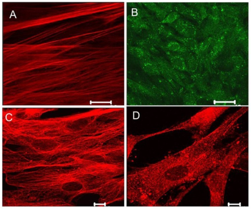 Immunolocalisation of placental ion channels.Cultured CPA were fixed then incubated with primary antibody to the channel of interest then visualised. Immunofluorescence for (A) TREK-1; scale bar 10 µm, (B) TASK-3; scale bar 40 µm (C) CaV1.2 channels; scale bar 10 m, was apparent. Patterns of expression varied with TREK-1 characterised by linear expression while TASK-3 was perinuclear. (D) Representative TWIK-2 expression in CPA; scale bar 10 µm.
