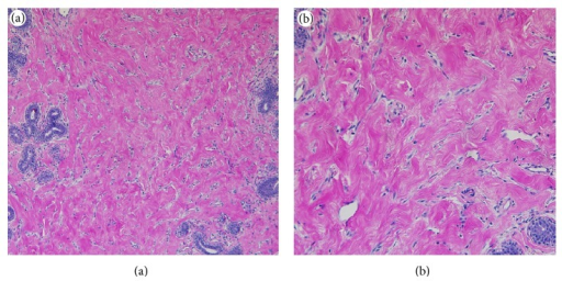 Morphological features of the breast nodules (hematoxylin-eosin stain). Characteristic features of PASH including dense eosinophilic stroma and slit-like spaces lined by attenuated spindle cells are evident (original magnifications ×100 (a) and ×200 (b)).