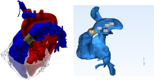 3D anatomical model reconstructed from gadolinium-enhanced MR images (red: systemic circulation, blue: pulmonary circulation with the homograft shown in dark gray, light gray: myocardium). Measurements in the right panel are in mm.