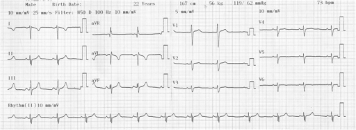 A resting standard 12-lead electrocardiogram of a 22-year-old Nigerian man. He had a heart rate of 73 beats per minute, inversion of P waves in leads I, aVL and aVR, dominant S waves in leads I and V1 to V6, reversed R wave progression in chest leads, low voltage QRS axis in V4 to V6, extreme QRS axis, flattened T waves in V4 to V6 and aVR and inverted T waves in lead I and aVL