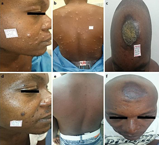 Male with 250 lesions. This patient was treated with intramuscular meglumine antimoniate. After failure, the patient was treated with miltefosine and was cured. Lesions before (a–c) and after treatment (d–f).