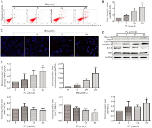 PD induces apoptosis in BEL-7402 cells. BEL-7402 cells were treated with different concentrations of PD for 24 h. (A) Apoptotic cells were detected by Annexin V/PI staining using flow cytometry. (B) Quantitation of the results obtained from (A). (C) The apoptotic cells were evaluated with Hoechst 33342 staining and imaged using the In Cell Analyzer 2000 System. (D) The expression of apoptosis-related proteins, including cleaved PARP, cleaved caspase-3, Bcl-2, and Bax, were analyzed by Western blot analysis. (E) Quantitation of the results obtained from (D). bP<0.05, cP<0.01 vs control.