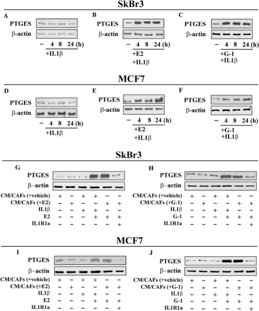 PTGES protein expression in SkBr3 (A–C) and MCF-7 (D–F) cells treated with 10 ng/ml IL1β alone or treated for 8 h with 10 nM E2 or 100 nM G-1 and then exposed to 10 ng/ml IL1β, as indicated. Protein levels of PTGES in SkBr3 (G,H) and MCF-7 (I–J) cells treated for 8 h with 10 nM E2 or 100 nM G-1 and then switched for additional 8 h to medium without serum in the presence of 10 ng/ml IL1β or conditioned medium collected from CAFs (CM/CAFs) treated for 8 h with vehicle [CM/CAFs (+vehicle)], 10 nM E2 [CM/CAFs (+E2)] and 100 nM G-1 [CM/CAFs (+G-1)]. SkBr3 and MCF-7 cells treated for 8 h with 10 nM E2 or 100 nM G-1 were also exposed to [CM/CAFs (+E2)] and [CM/CAFs (+G-1)] alone or in combination with 1 μM IL1R1 antagonist namely IL1R1a. β-actin serves as a loading control. Results shown are representative of at least two independent experiments.