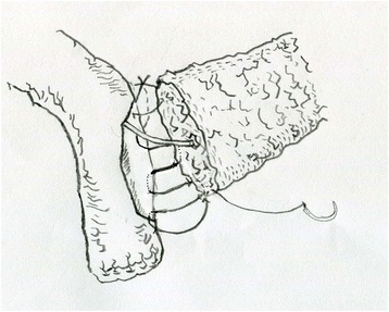 The posterior of the anastomosis was from upper edge to the lower edge. All the stitches were from the outside to the inside of the jejunum and then transfix the pancreas, and then the stump of pancreas was sutured with jejunum from the inside to the outside. The procedure was repeated until the very lower edge of the pancreas