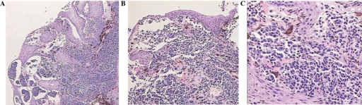 Histological examination of the resected esophageal mass. A subepithelial pigmented cellular tumor is displayed, stained with hematoxylin and eosin and observed at magnifications of (A) ×40, (B) ×100 and (C) ×200.