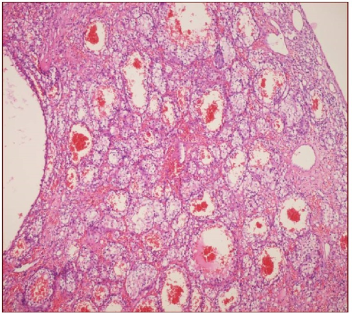 Dilated blood vessels and cells clusters with clear cytoplasm in congested loose stroma (H&E, ×20).
