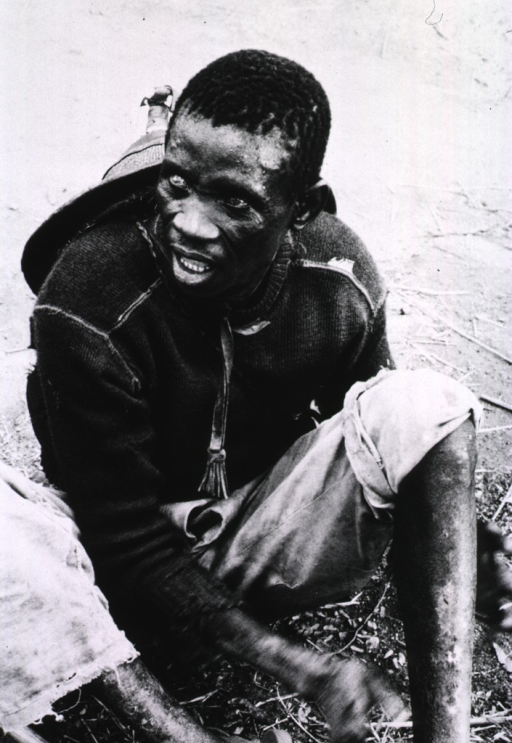<p>A blind young man is sitting on the ground.</p>