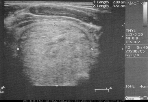 Ultrasound showed heterogenic 2.88 x 3.51 cm mass with hypoechoic halo.