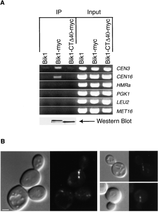 Bik1-CTΔ40 interacts with MTs but not kinetochores. (A) Cross-linking of Bik1 to CEN DNA requires the cargo-binding domain. The Chip experiment was performed as described in the legend to Figure 3 except that Bik1 and Bik1-CTΔ40 are tagged at the COOH terminus with 13 tandem copies of the myc epitope (Longtine et al., 1998). Bik1 and Bik1-CTΔ40 are expressed at the same levels. Western blot with an anti-myc monoclonal antibody is shown at the bottom (100 μg of cell extract was loaded in each lane). (B) The localization of Bik1-CTΔ40-GFP. Pairs of DIC and fluorescence images are shown. Bar, 2 μm.