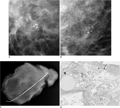 Carcinoma mixed within milk of calcium of breast in 48-year-old woman.A, B. Craniocaudal (A) and true lateral (B) spot magnification mammograms show poorly defined smudges and typical semilunar sedimented calcium. In addition, within milk of calcium cluster, several fine pleomorphic microcalcifications (arrow), different in appearance from sedimented calcium, are observed.C. Specimen radiography, including microcalcifications, indicates successful excision of lesion.D. Histological specimen shows multiple cysts lined with malignant cells which contain microcalcifications (arrows) among cystic acini (arrowhead). (Hematoxylin & Eosin staining; magnification, ×40)