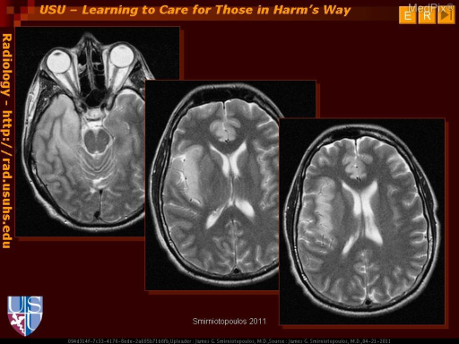 Herpes simplex encephalitis usually affects the cortical gray matter, especially early in the disease.  Temporal lobe and insular cortex are usually first - with abnormal signal intensity (bright on FLAIR and T2W), cortical thickening (sulcal effacement), and variable enhancement.  Similar changes occur in the cingulate gyrus in up to 2/3 of patients.The inferior frontal gyri may be affected next.  Since vascular/ischemic lesions also affect the cortex, a non-vascular pattern of involvement (e.g. bilateral insula or insula plus cingulate) can be very helpful.  Involvement of the basal ganglia gray matter is uncommon and/or late in the course of HSV encephalitis.