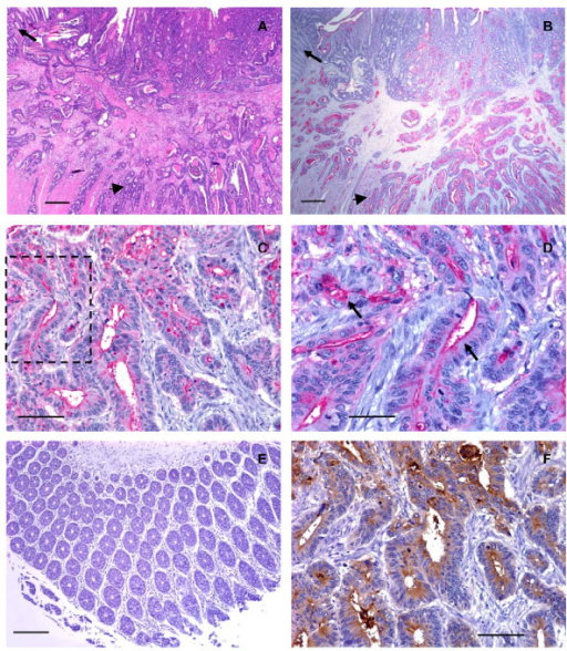 Human well differentiated colorectal adenocarcinomas expressed low levels of C2-O-sLex. (A) Photomicrograph of a tissue section of a well differentiated colorectal adenocarcinoma stained with hematoxylin and eosin, scale bar = 500 μm. (B) A serial section of the same tissue as shown in (A) stained with CHO-131 mAb (15 μg/ml). Red color indicates positive reactivity with the CHO-131 mAb, scale bar = 500 μm. In (A) and (B) the arrow indicates adjacent normal colorectal mucosa. The arrowhead indicates nests of neoplastic cells in the tunica submucosa and muscularis. (C) Another well differentiated colorectal adenocarcinoma stained with CHO-131 mAb. Red color indicates positive reactivity with the CHO-131 mAb, scale bar = 100 μm. (D) Increased magnification of the boxed area shown in (C) demonstrating red stained CHO-131+ cells. Arrows in (D) indicate cytoplasmic and luminal reactivity with CHO-131 mAb, scale bar = 50 μm. (E) Mucosa of normal colorectal epithelium stained with CHO-131 mAb. Note the absence of red color, indicating a lack of reactivity with the CHO-131 mAb, scale bar = 150 μm. (F) A serial section of the same tissue as in (C) and (D), stained with CEA mAb (1.6 μg/ml). Brown color indicates positive reactivity with CEA mAb, scale bar = 100 μm. All tissue sections were 4 μm thickness. Figures (A) and (B) 20× magnification, (C) 200× magnification, (D) 400× magnification, (E) 100× magnification, and (F) 200× magnification. Mayer's hematoxylin was used as a counterstain for tissues stained with CHO-131 and CEA mAbs. Representative sections from multiple stained tissues are shown.