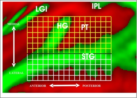 Grid measurement.Activations in auditory cortex were quantified using medial (yellow) and lateral (white) grids. Each grid contained individual grid elements of identical size (approximately 5×5 mm) on the inflated cortical surface. Average cortical surface curvature is shown (gyri = green, sulci = red). LGI = long gyri of the insula; HG = Heschl's Gyrus, IPL = inferior parietal lobe, PT = Planum Temporale, STG = superior temporal gyrus. Approximate anterior-posterior and medial-lateral directions on the inflated surface are shown.