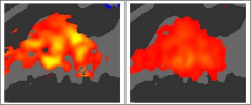 Effects of image acquisition parameters.Stimulus dependent activations in sparse (left) and continuous (right) sampling conditions averaged over tone parameters, hemispheres and subjects. Scale ranges from 0.1% (red) to 1.0% (yellow) combined with a z>3.0 mask.