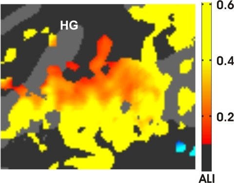 Effects of attention.The attentional lability index (ALI) for areas showing significant attention effects. Data were averaged over sound parameters, hemispheres, subjects, and image acquisition protocols. Activations in blue regions in the STS (lower right) were enhanced during visual attention. HG = Heschl's Gyrus. z-score threshold = 4.0.