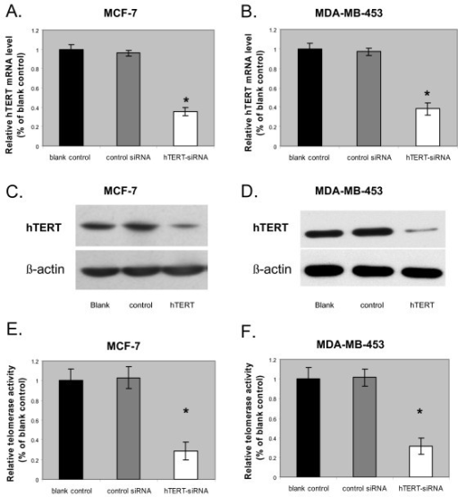 Effects of hTERT-siRNA knock-down in breast cancer cells. (A and B) hTERT mRNA expression levels quantified by RT-PCR in MCF-7 (A) and MDA-MB-453 (B) cells at 48 h after a 6 h exposure in hTERT siRNA, control siRNA, or untransfected, respectively. Relative quantification of hTERT mRNA expression levels was accomplished by the Pfaffl method of  Data are shown as mean ± SD (error bar) of 3 experiments; *, p = 0.001, two-tailed student's t-test. (C and D) representative western blots showing the expression of hTERT protein expression levels at 48 h after a 6 h exposure in hTERT siRNA (right lane; hTERT), control siRNA (middle lane; control), or untransfected (left lane; blank), respectively, in MCF-7 (C) and MDA-MB-453 (D) cells. β-actin was the internal loading control. (E and F) Telomerase activity levels quantified by TRAP assay in MCF-7 (E) and MDA-MB-453 (F) cells at 48 h after a 6 h exposure in hTERT siRNA, control siRNA, or untransfected, respectively. Data are shown as mean ± SD (error bar) of 3 experiments; *, p = 0.001, two-tailed student's t-test.