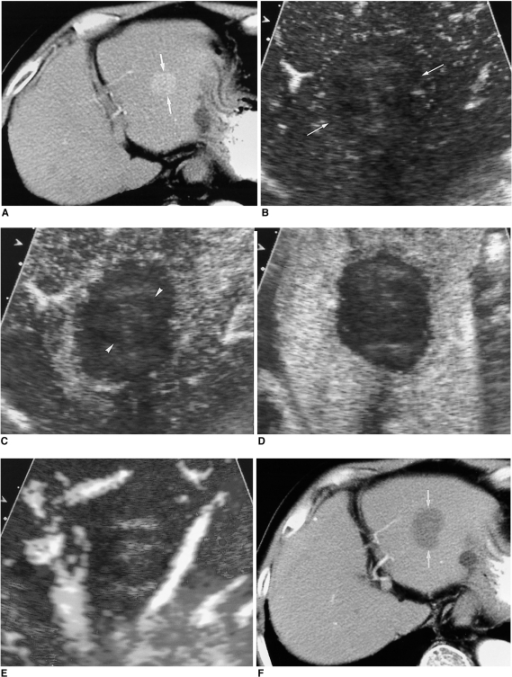 A 72-year-old-man with hepatocellular carcinoma before and after successful radiofrequency ablation.A. Contrast-enhanced CT scan obtained during the arterial phase before radiofrequency ablation shows a 2.8-cm hepatocellular carcinoma (arrows) with contrast enhancement in liver segment 2.B. Contrast-enhanced agent detection imaging obtained at 18 sec-delay shows no vascularity within the ablation zone (arrows).C, D. Acoustic emission imaging with a rapid sweeping technique at 40 and 60 sec-delay shows that all of the ablation zone is avascular without peripheral enhancement. The index tumor (arrowheads) with a satisfactory cancer-free ablative margin of the ablation zone is noted.E. Contrast-enhanced power Doppler US again shows the ablation zone without flow signal. Some artifacts are also seen.F. Contrast-enhanced CT obtained 1 month after radiofrequency ablation shows a round ablation zone (arrows) of low attenuation with the absence of contrast enhancement attesting to the technical success of the ablation.