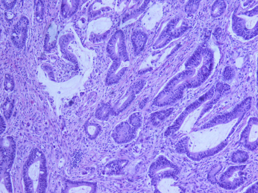 Moderately differentiated adenocarcinoma (HE × 200). The glands are lined by neoplastic cells with hyperchromatic nuclei. The tumor was accompanied with small mucinous lakes lind by well-differentiated epithelial cells. The tumor invades all intestinal wall.