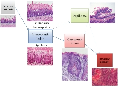 The natural history of oral carcinogenesis.