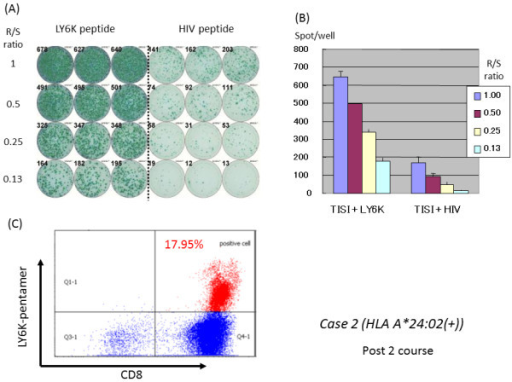 Representative immunological monitoring assays detecting antigen-specific CTL response in a patient belonging to the 24(+) group. PBLs obtained from case 2 patient (HLA-A*2402 positive) after the 10th vaccination were cultured in rIL-2 for 14 days with 2 times of LY6K-peptide stimulation. (A) The cultured lymphocytes were subjected to the ELISPOT assay after depletion of CD4-positive cells by magnetic beads. TISI cells were incubated with responder cells in the presence of LY6K peptide or HIV peptide as an irrelevant control, and the spot counts were quantified (B). (C) The cultured lymphocytes were analyzed with HLA-A2402/LY6K-pentamer in the combination with CD8 and CD3 mAbs with flow cytometry. The value of pentamer (+)/CD8(+) among CD3(+) cells was shown. R/S, responder/stimulator.