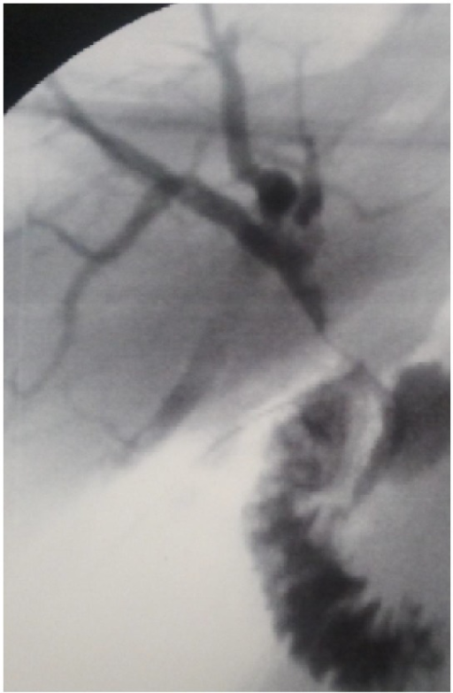 Trans-kher cholangiography at the end of the surgical procedure: no evidence of any filling defects in the biliary tree and good passage of the contrast medium into the duodenum.