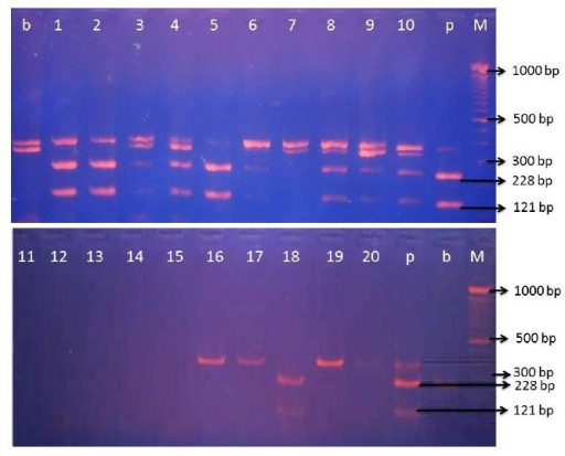 Electrophoretic patterns of cytochrome b gene after digestion by BseDI restriction enzymes. M: marker 100 bp DNA ladder, lane 1 to 20: DNA fragment of different meatball samples from twenty meatball shops in Yogyakarta region, b: DNA fragment after digestion of PCR product of raw beef cytochrome b gene, and p: DNA fragment after digestion of PCR product of raw pork cytochrome b gene. PCR, polymerase chain reaction.