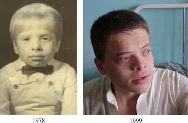 First family: The second photograph was taken when the boy became totally blind.