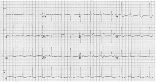 Initial electrocardiogram. Electrocardiogram shows ST-segment depression in leads V 3-5 and flattened T wave in leads II, III, and aVF.