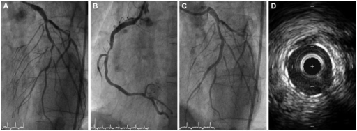 Initial coronary angiography. A: left coronary angiography shows near total occlusion of the mid left anterior descending coronary artery and intermediate stenosis of the left circumflex coronary artery. B: right coronary artery shows significant stenosis at the mid portion. C: after stent implantation, coronary angiography shows a successful result. D: final intravascular ultrasound finding after overlapping stent does not show dissection, or stent malapposition, or stent underexpansion.