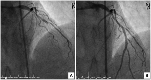 Coronary angiography in the first acute stent thrombosis event. A: mid left anterior descending coronary artery at the previous stented site shows total occlusion by thrombi. B: after aspiration thrombectomy and balloon angioplasty, final angiography shows Thrombolysis in Myocardial Infarction grade 3 flow.