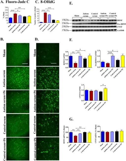 Effect of autism and control sera in the presence or absence of P6 on neurodegeneration, oxidative stress, and CNTF, BDNF, and pro-BDNF expression in the cerebral cortex of young Wistar rats.P 0.5 rats were injected intracerebroventricularly with saline (sham) or 2% autism or control serum with or without 20 nM P6. On postnatal day 26–27, rats were sacrificed and their brains were evaluated by quantitative immunohistochemistry and Western blots (A and B) Quantification and representative images of Fluorojade C staining, a sensitive marker of neurodegeneration, in the cerebral cortex are shown. Quantification is based on minimum of 6 animals/group (including 2 animals for each serum sample injected). (C and D) Quantification and representative images of 8-OHdG positive neurons, a marker of DNA damage caused by oxidative free radicals, in the cerebral cortex are shown. Quantification is based on minimum of 6 animals/group (including 2 animals for each serum sample injected). (E and F) Representative Western blots and densitometric quantification of BDNF, pro-BDNF, and CNTF expression normalized to GAPDH in the cerebral cortex of young Wistar rats. Data are presented as mean±S.E.M. based on sham (n = 7), autism serum (n = 7), autism serum+P6 (n = 8), control serum (n = 6), and control serum+P6 (n = 7). (G) Messenger RNA expression levels of BDNF and CNTF presented as percent of sham group. Quantification is based on 6 rats/groups. *p<0.05, **p<0.01, and ***p<0.001. ANOVA with Bonferroni's post-hoc test and/or Student's t-test. Scale bar = 100 μm.