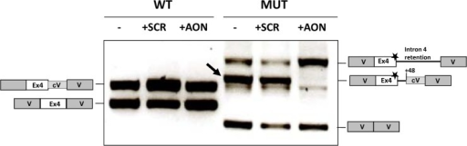 Effect of AON targeting the c.386G>A cryptic splice site on the splicing profile of murine minigenes.Wild-type (wt) and mutant (mut) murine minigenes transfected in Hep3B cells were cotransfected with 20 μM of AON and RT-PCR analysis performed after 24 h. SCR, scrambled oligonucleotide. The schematic drawings on both sides show the identity of the bands which were characterized by sequence analysis. Grey boxes represent vector sequences (V) and white boxes indicate exon 4. Numbers indicate the position of the cryptic splice sites used. The box denoted as cV indicates a stretch of vector DNA that is retained in the mRNA due to the use of a vector cryptic splice site. The star indicates the presence of the c.386G>A mutation. The arrow points to the band corresponding to the use of the cryptic c.386+48 site in the mutant minigenes.