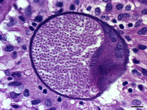 Histopathological identification of B. besnoiti cyst (haematoxylin and eosin stain, ×1000). The sample was taken at 70 dpi from the fore leg dermis of the B05 rabbit. Tissue cyst of B. besnoiti in collagenic dermis was spherical in shape, thick walled and contained a single maximally developed parasitophorous vacuole with thousands of bradyzoites. Note the several host cell nuclei and nucleoli. A granulomatous inflammatory infiltrate (predominantly macrophages and lymphocytes) surrounded the cyst. Bar = 10 μm