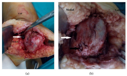 (a) Intraoperative images of calcaneus employing the heel splitting approach. Note the conglomerate of black grains arising from the cavity on the medial surface of calcaneus (white arrow). (b) Intraoperative images of calcaneus employing the heel splitting approach. Note the large medial cavity (white arrow) and cortical erosion covered by minute black grains (black arrow).