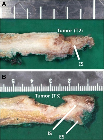 Macroscopic finding of the comparison between T2 and T3 tumor. a standard ISR has enough distal and lateral surgical margins in case of T2 tumor. b it is often difficult to ensure a safe resection margin in case of T3 tumor. The resected specimen of extended ISR in T3 tumor shows enough surgical margin included upper part of ES. IS internal sphincter. ES external sphincter
