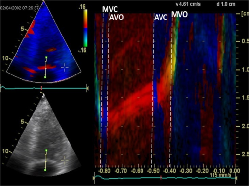 Cardiac time intervals assessed by a color tissue Doppler imaging (TDI) M-mode line through the mitral leaflet.Left: Four-chamber gray-scale (bottom) and color TDI (top) views in end-systole displaying the position of the M-mode line used for measuring the cardiac time intervals. Right: Color diagram of the TDI M-mode line through the mitral leaflet. MV = Mitral Valve; MVC = MV Closing; AVO = Aortic Valve Opening; AVC = Aortic Valve Closure; MVO = MV Opening.