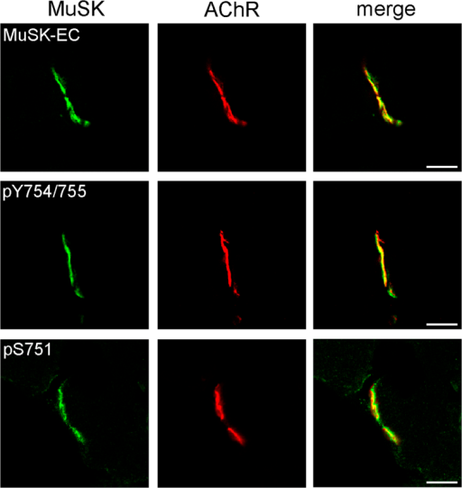 Phosphorylated S751 is present at NMJs.Frozen sections of M. gastrocnemius were stained with MuSK specific antibodies (green) and with Alexa 594-conjugated α-BGT (red) to label AChRs. MuSK-EC recognizes an epitope of the MuSK extracellular domain, pY754/755 recognizes an epitope carrying phosphorylated Y754 and Y755 and pS751 is directed against an epitope containing phosphorylated S751. Note that S751 phosphorylation co-localizes with AChRs. Images were obtained by confocal microscopy and representative images are shown. Scale bar, 10 μm. EC, extracellular.