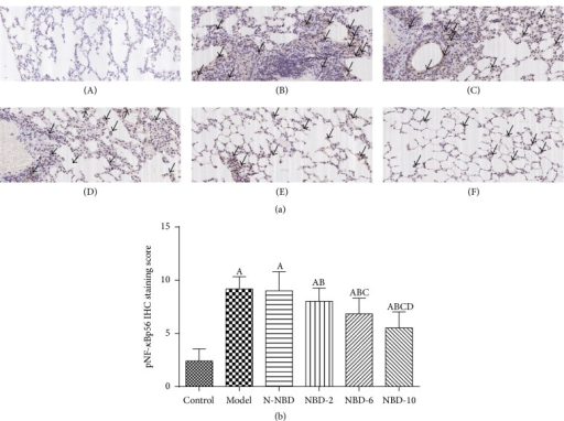 Effect of NBD on pNF-κBp65 expression, as determined via immunohistochemistry, in the lung tissues of mice with ALI. (a) Representative photographs of pNF-κB P65 expression in the lung (original magnification ×200). (A) Control group; (B) model group; (C) N-NBD group; (D) NBD-2 group; (E) NBD-6 group; (F) NBD-10 group. Black arrows indicate the immunohistochemically positive pNF-κBp65. (b) IHC staining scores pertaining to pNF-κB P65 expression. pNF-κBp65 expression levels were increased by LPS administration, and these changes were inhibited by NBD pretreatment in a concentration-dependent manner. Data are expressed as the mean ± SD (n = 6). A represents versus control group, AP < 0.05; B represents versus model group, BP < 0.05; C represents versus N-NBD group, CP < 0.05; D represents versus NBD-2 group, DP < 0.05.