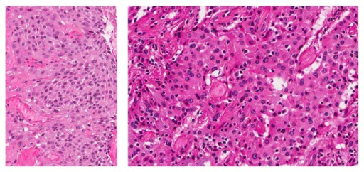 histopathology shows a polyp lined with malignant squam open i
