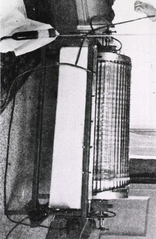 <p>View of Kolff's hemodialysis unit, the first to be used on a human.</p>