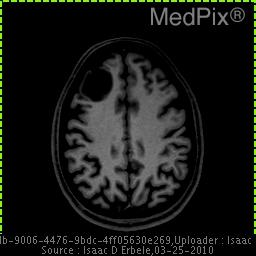 Right frontal lobe peripheral lesion with signal intensity lower than brain.