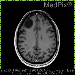 Right frontal lobe peripheral lesion with signal intensity lower than brain.  This lesion does not enhance.