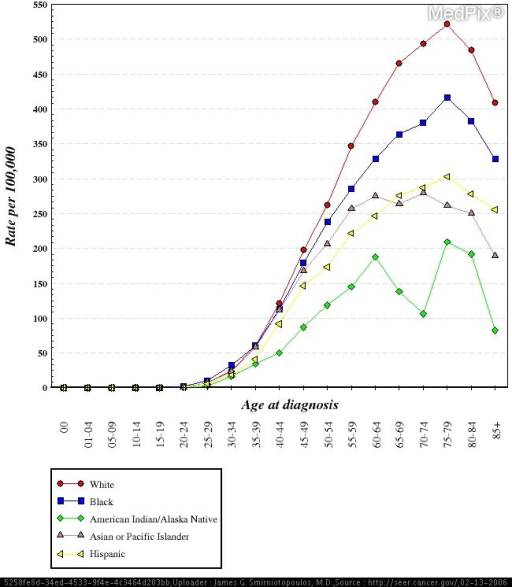 Breast Cancer incidence by age and race, from the NCI SEER study.